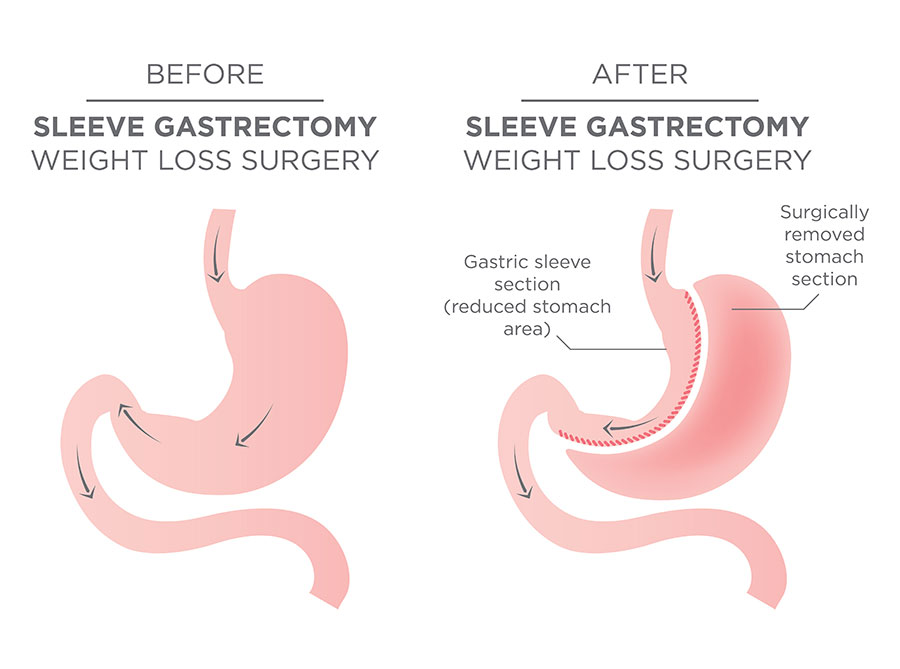 Bariatric Surgery Center Englewood Health