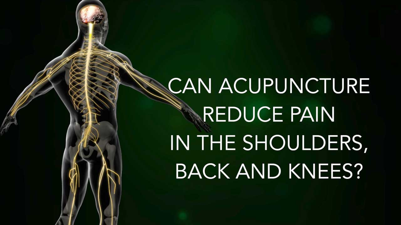 Video: Can Acupuncture reduce pain in the shoulders, back and knees?