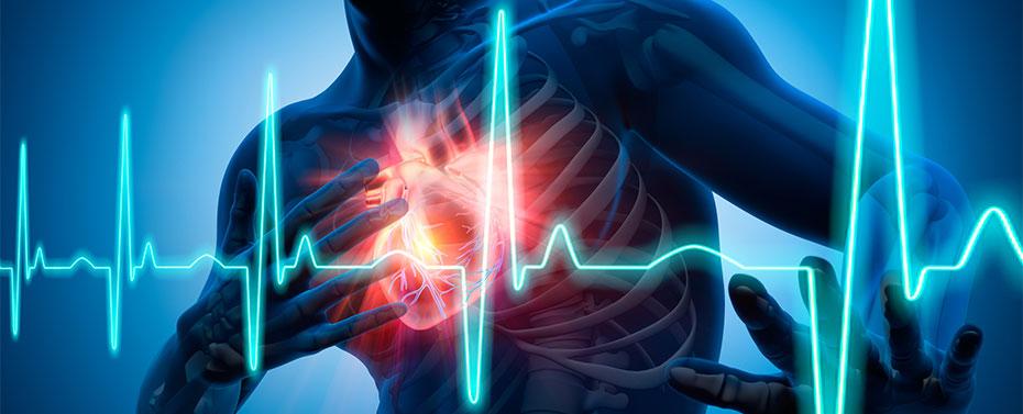 Illustration: Heart attack